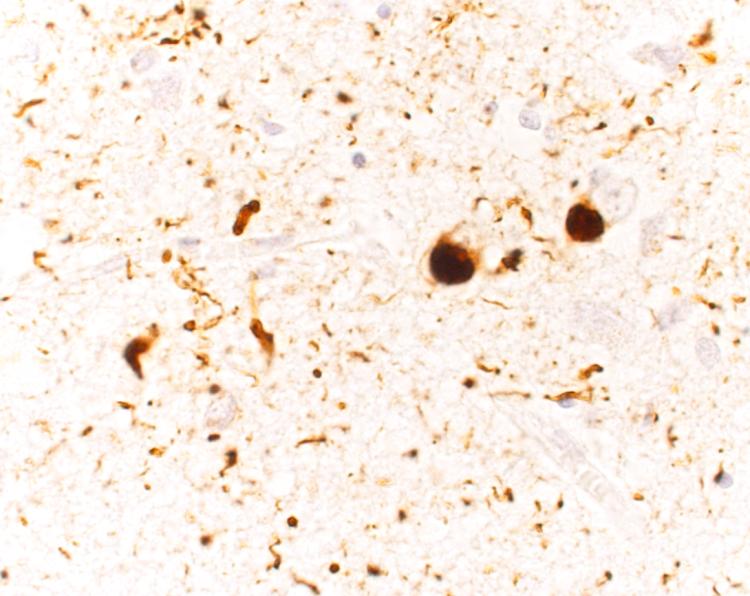 alpha-syn cortex